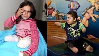 Зловещие отметины сионизма. По меньшей мере 225 228 палестинцев имеют инвалидность...